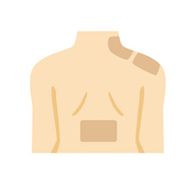 背中の張りと腰痛